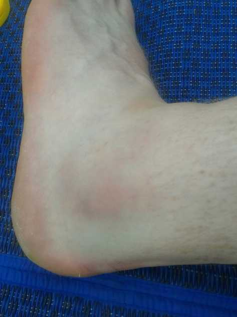 The swelling can be seen straight after it happened, but no bruising