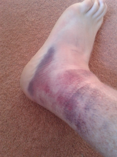 Heavy bruising and still swollen, a trip to the doctors and hospital for an X-Ray was in order